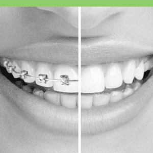 Orthodontics in costa rica braces orthodontist biting issues orthodontics is a specialty of dentistry that treats malocclusions commonly known as unaligned or crooked teeth solutioingenieria