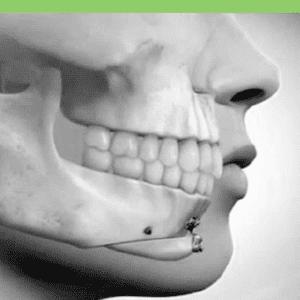 chin repositioning