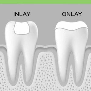 Dental Inlay Onlay