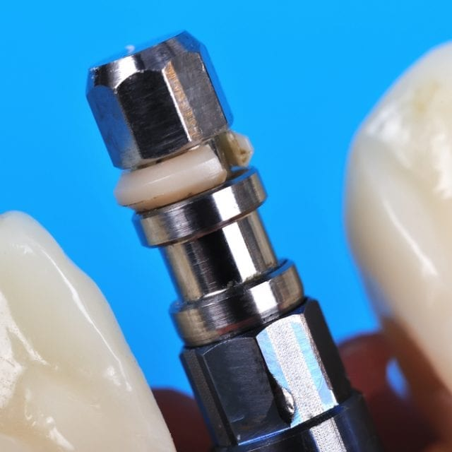 How Much Are Dental Implants in Costa Rica?