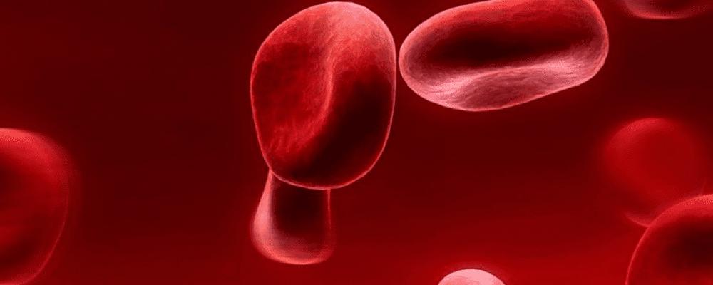 Platelet Rich Fibrin PRF