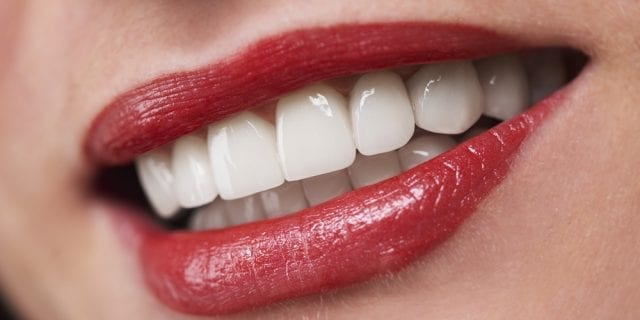 Veneers or Crowns: Which is the Best Choice for You?