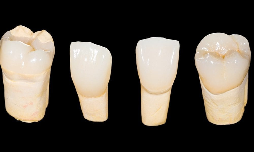 Zirconia crowns