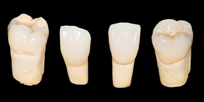 Zirconia Crowns & Bridges in Costa Rica